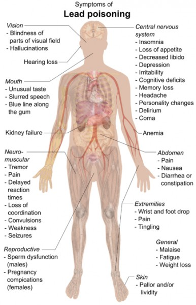 435px-Symptoms_of_lead_poisoning_(raster)