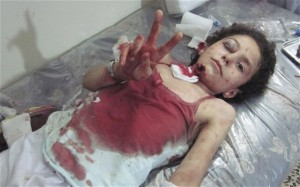 Wounded Syrian Child Asks for Peace